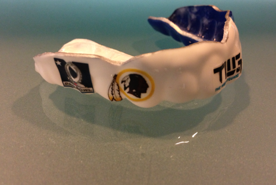 TWG Guard - Custom Mouthguard